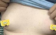 羞死了!25岁小伙胸部越来越大,按一下乳汁飚出半米远